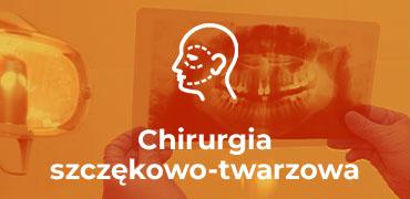 chirurgia-szczekowa_h